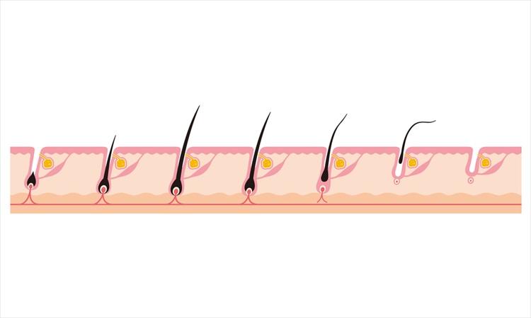 AGAの薄毛や抜け毛は自然治癒しない!