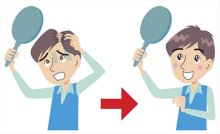 心配な抜け毛、その原因と対策