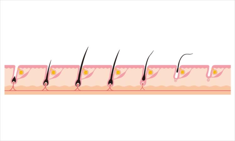 薄毛の進行を止めるプロペシア、育毛促進の観点からは?