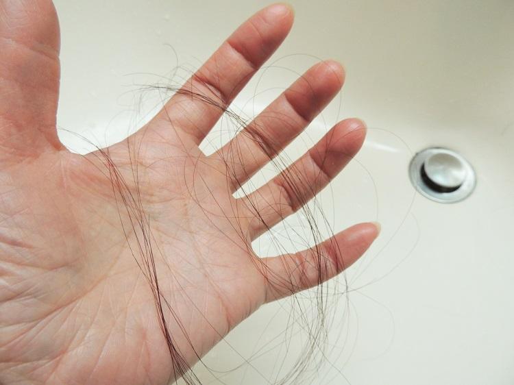 抜け毛の本数が多い?それはAGAの兆候かも!