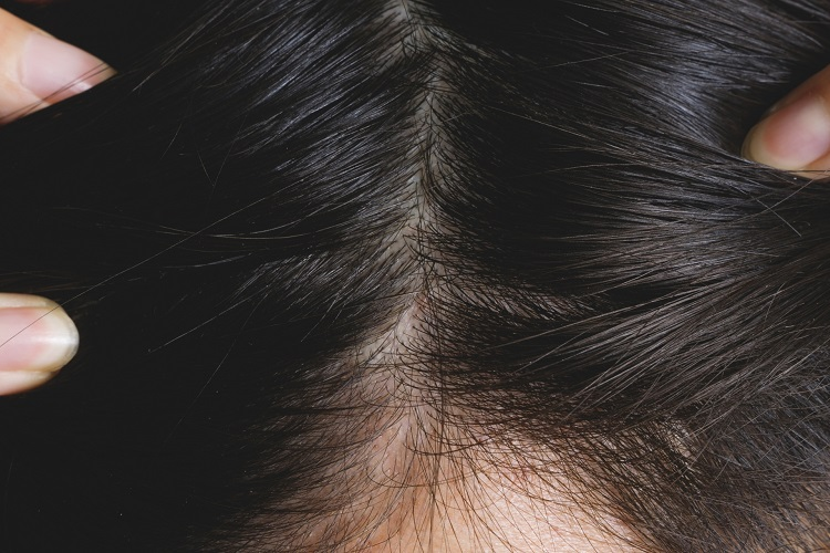 発毛と育毛は違うの?効果的な発毛と育毛の方法を知りたい!