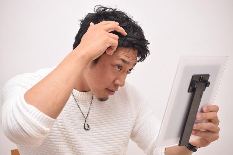 AGAは治る?薄毛を改善する治療方法