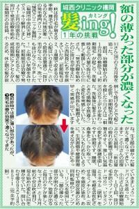 (2014/09/26)西編集1面
