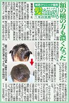 (2014/11/26)西編集1面